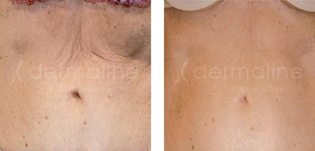 radiofrecuencia corporal fotos antes y despues