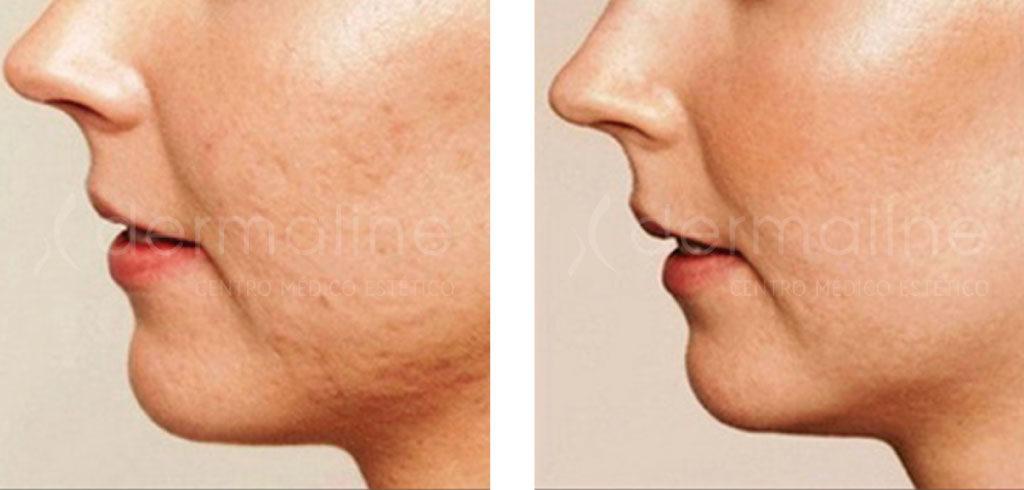 Manchas de acne antes y despues de adelgazar