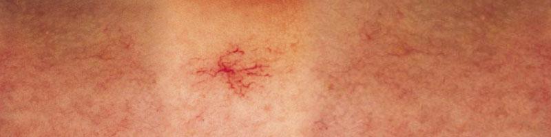 lesiones vasculares en piel