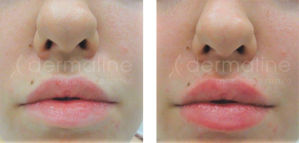 Aumento de labios con acido hialuronico antes y despues de adelgazar